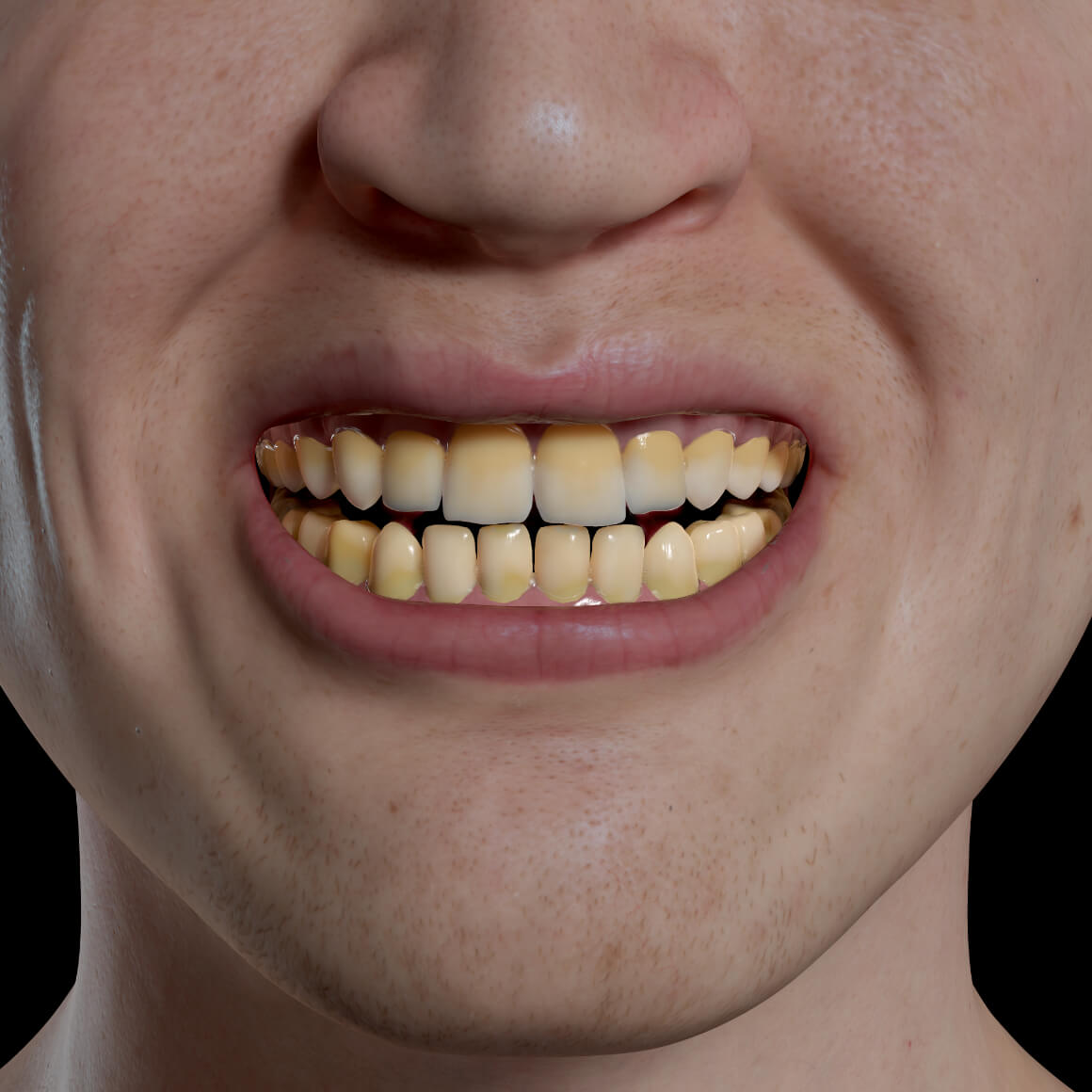 Smile of a Clinique Chloé patient positioned face-on showing discolored, yellow teeth