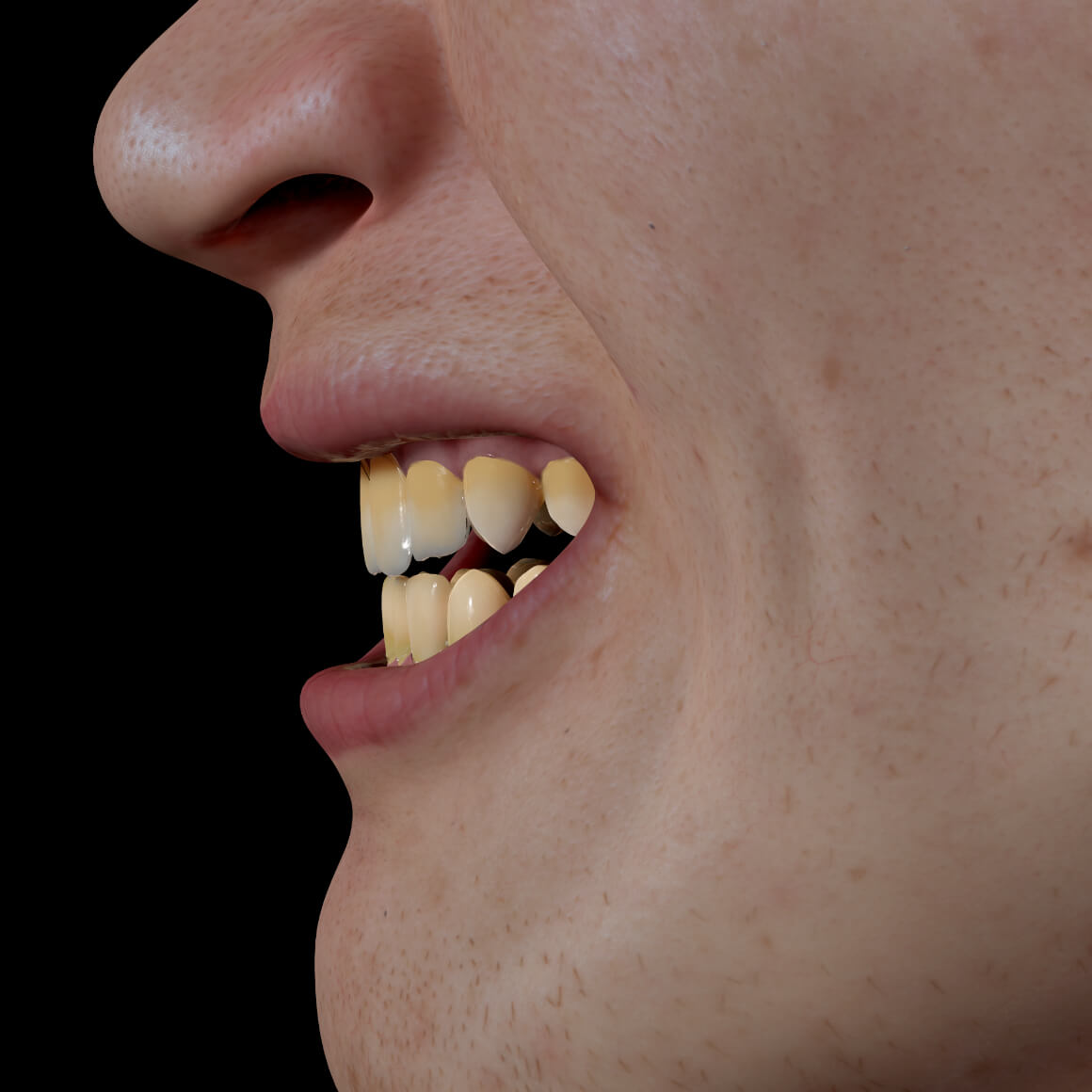 Smile of a Clinique Chloé patient positioned sideways showing discolored, yellow teeth