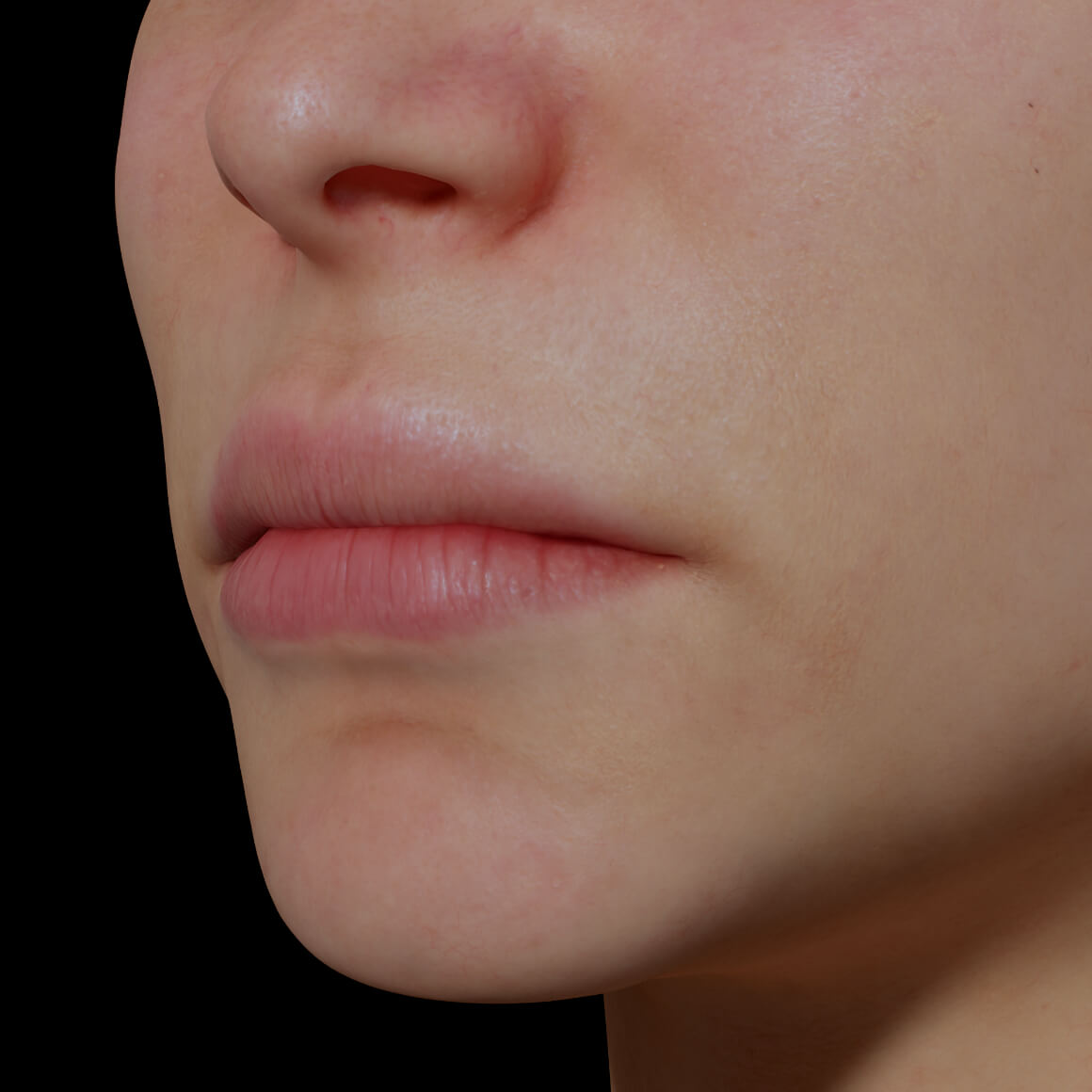 Female patient from Clinique Chloé at an angle after dermal filler injections to increase lip volume