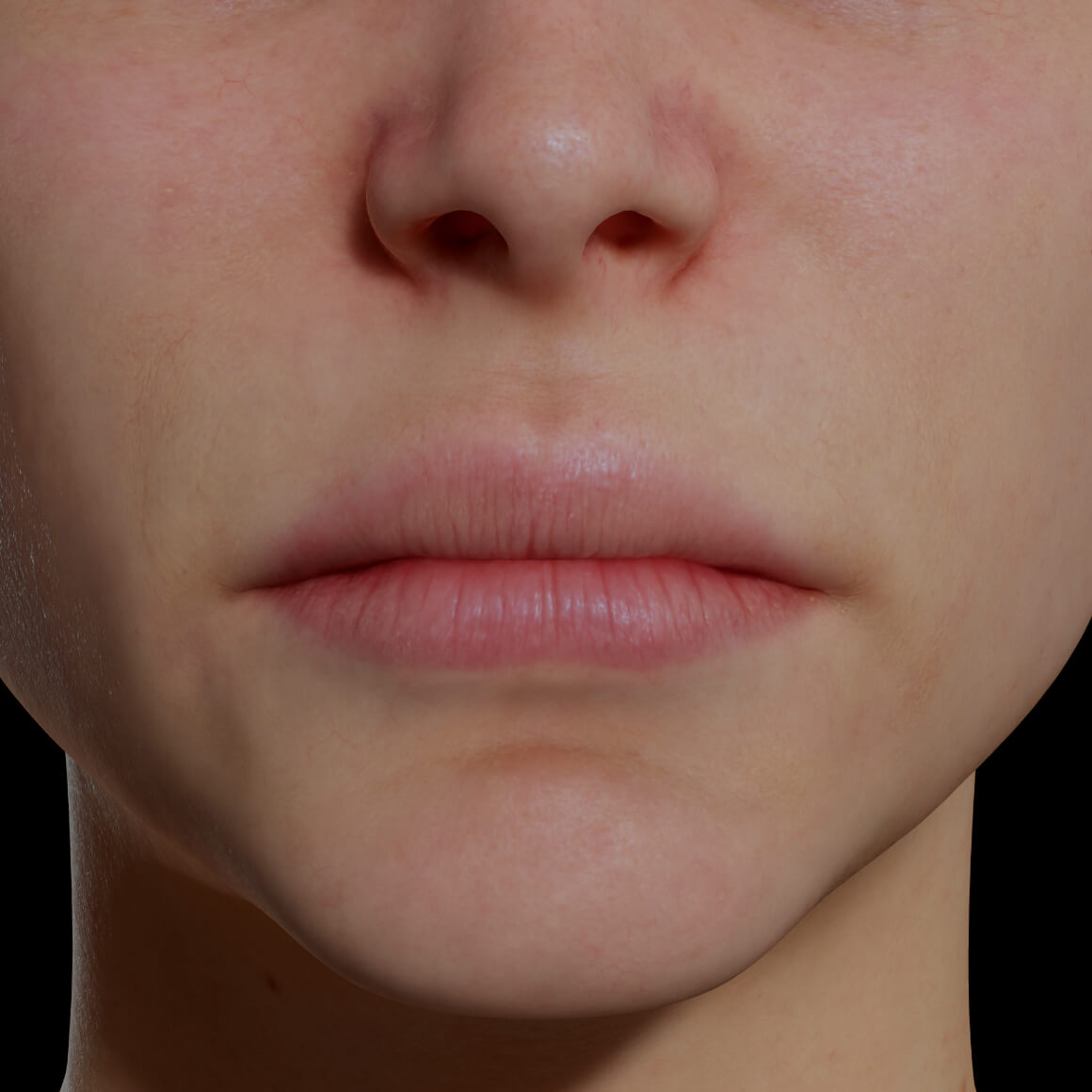 Female patient at Clinique Chloé facing front after dermal filler injections to increase lip volume