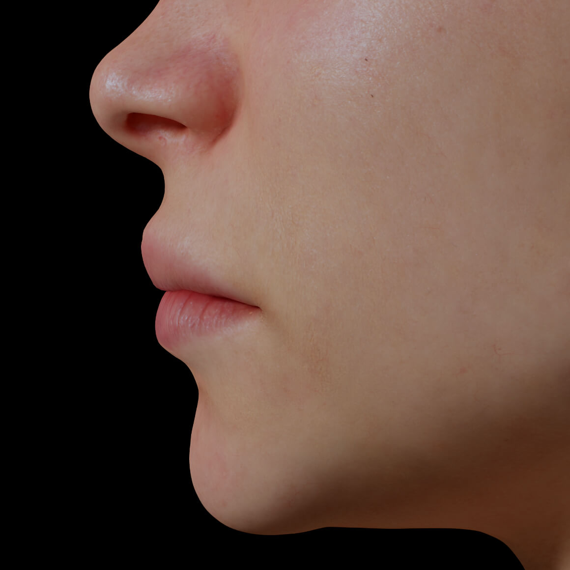 A Clinique Chloé female patient positioned sideways after dermal filler injections to increase lip volume