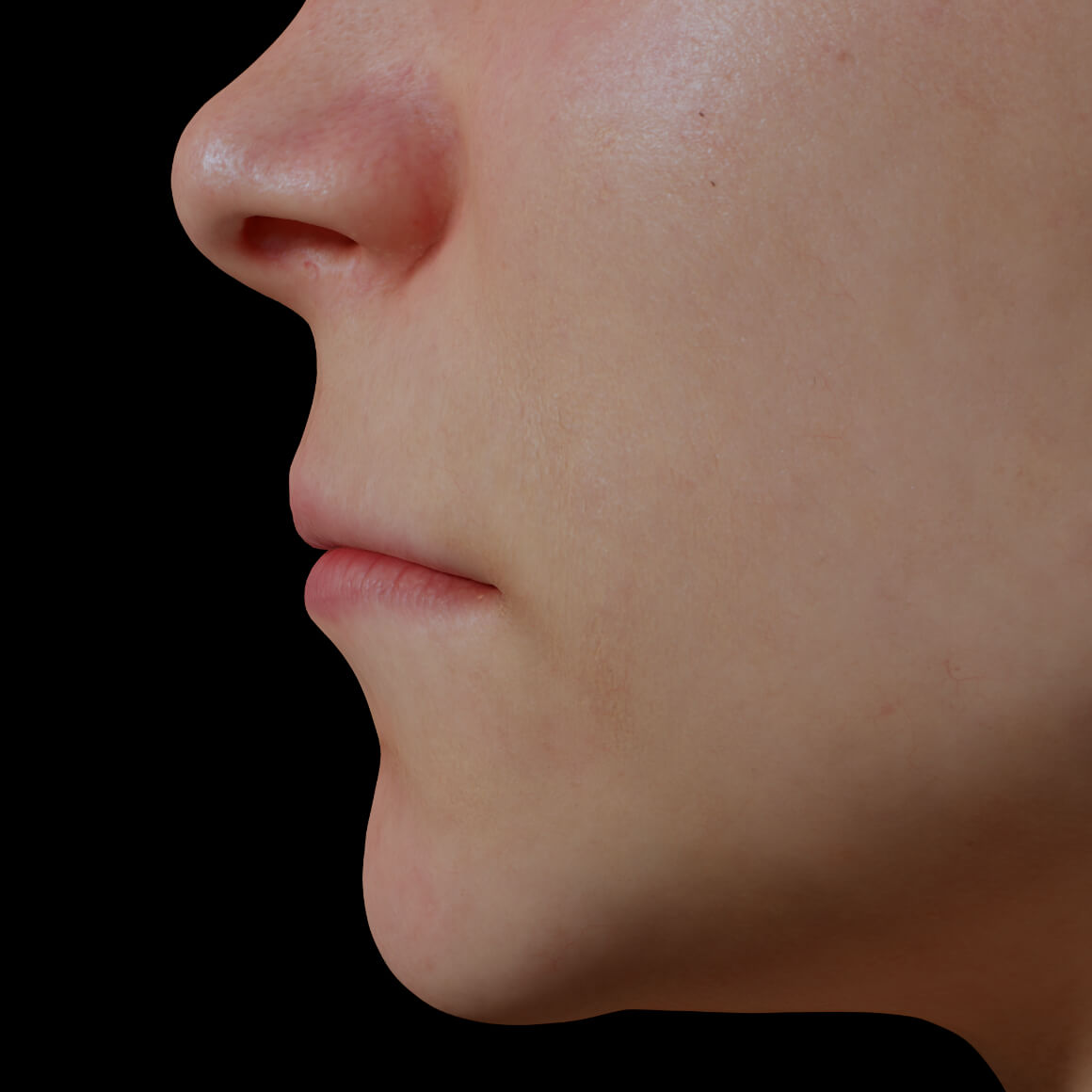 Female patient at Clinique Chloé positioned sideways showing thin, not very voluminous lips