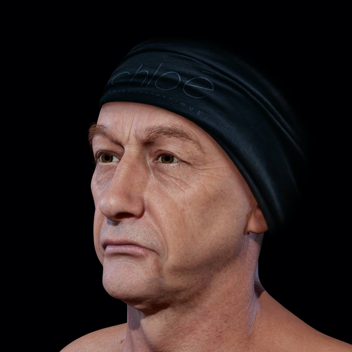 A male patient from Clinique Chloé positioned at an angle demonstrating a loss of facial skin firmness
