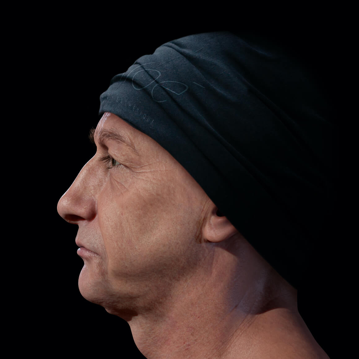 A male patient from Clinique Chloé positioned sideways demonstrating a loss of facial skin firmness