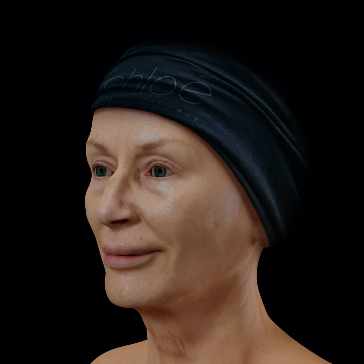 Female patient from Clinique Chloé positioned at an angle after a Profound non-surgical facelift treatment