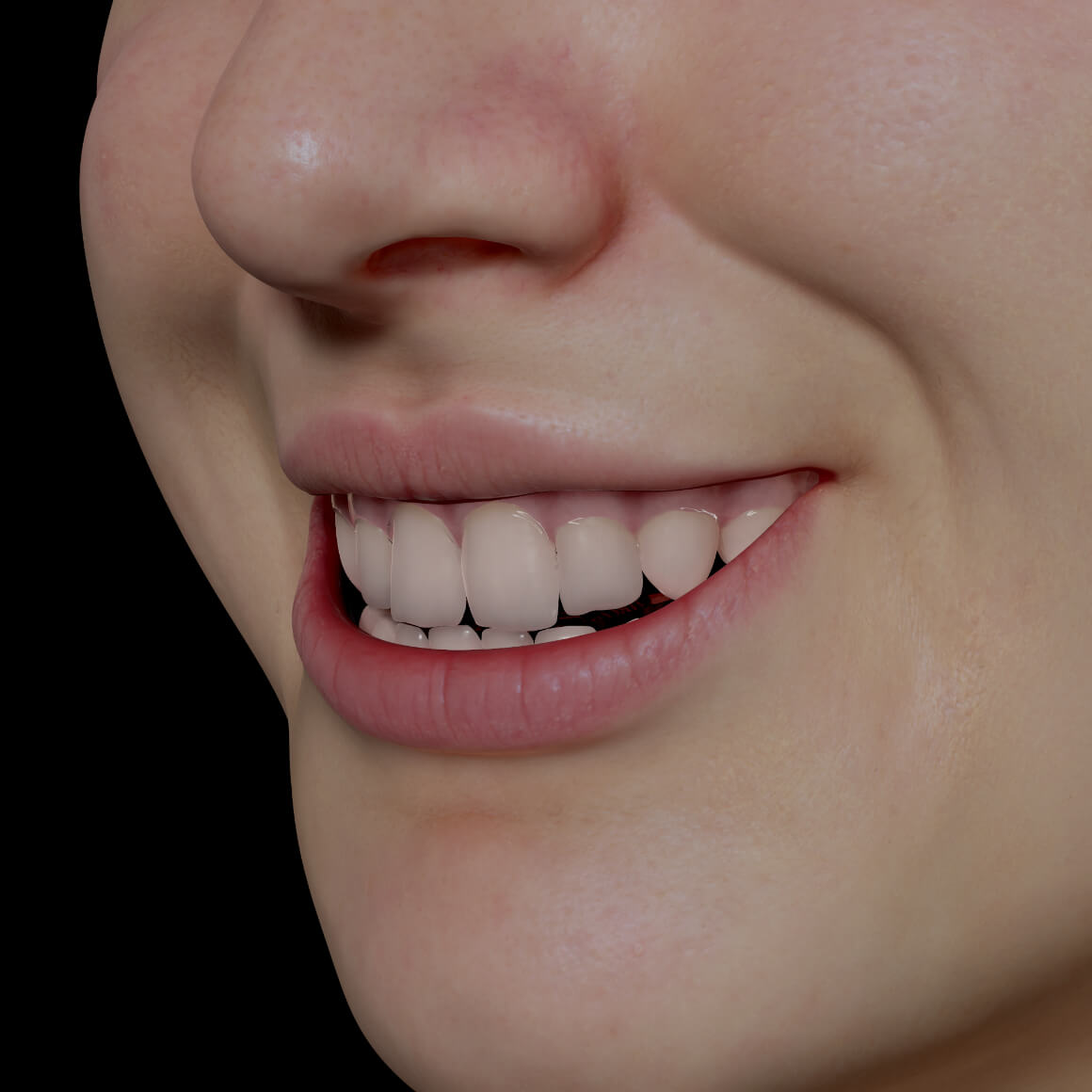 Smile of a Clinique Chloé female patient positioned at an angle after neuromodulator injections for gummy smile