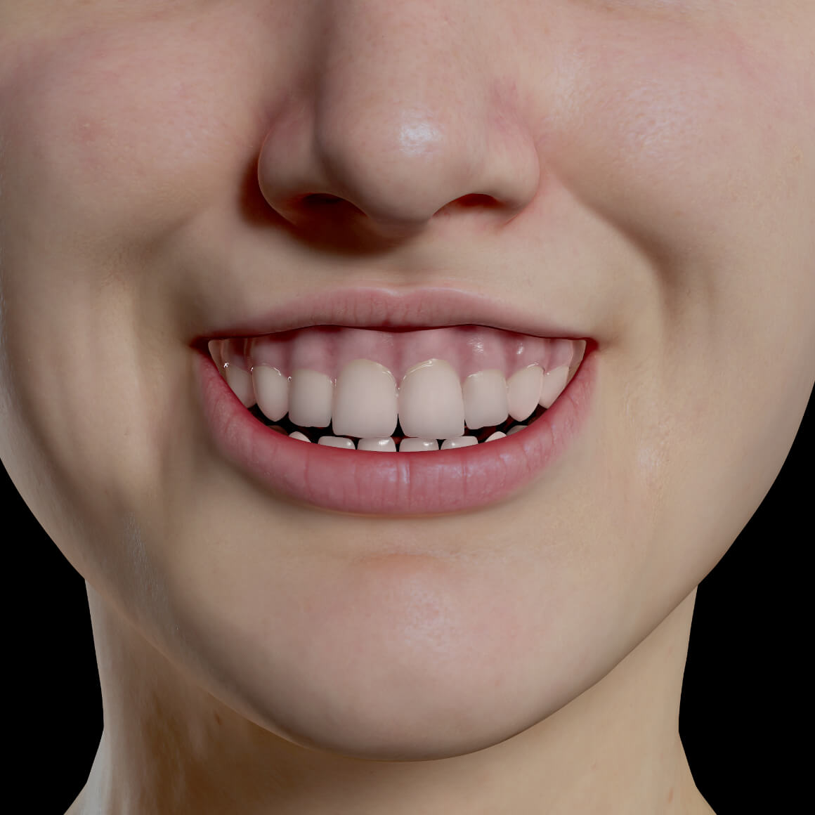 Gummy smile of a female patient from Clinique Chloé facing front