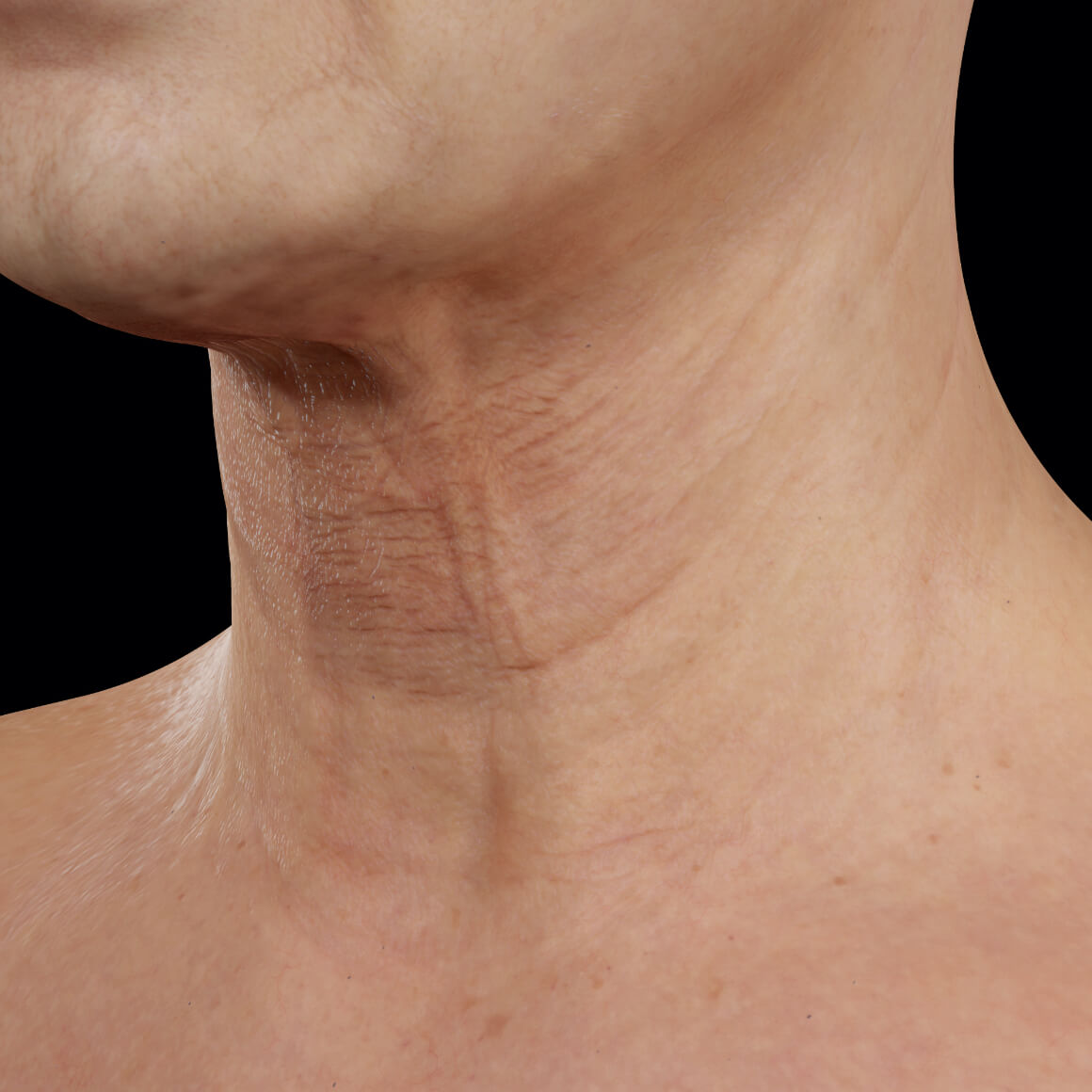 Clinique Chloé female patient positioned at an angle showing neck skin laxity