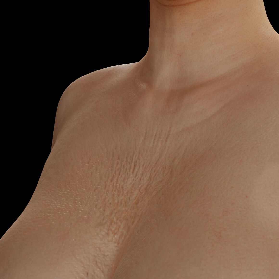 Female patient from Clinique Chloé positioned at an angle with sagging skin and wrinkles on the skin of the décolleté