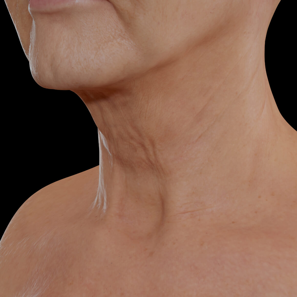 Female patient from Clinique Chloé positioned at an angle after Sculptra injections for neck skin tightening