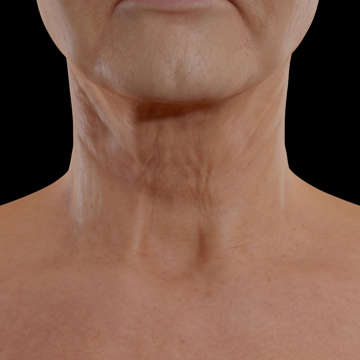 Female patient from Clinique Chloé facing front after Sculptra injections for neck skin tightening