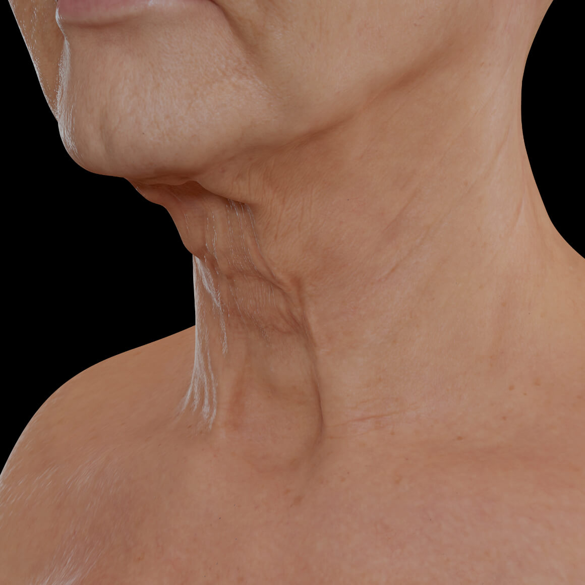 Female patient from Clinique Chloé positioned at an angle showing neck skin laxity