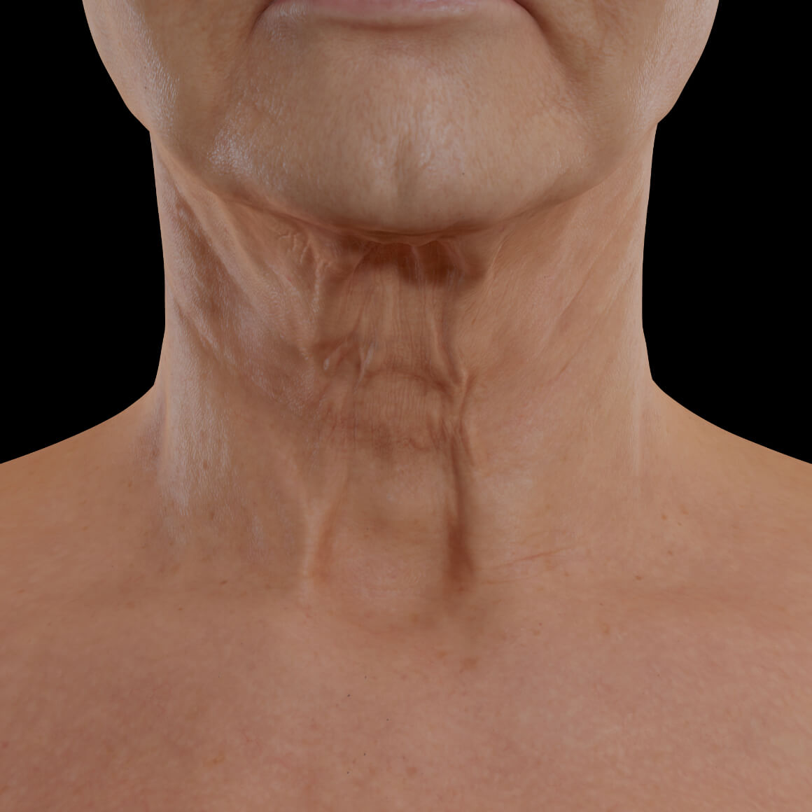 Female patient from Clinique Chloé facing front showing neck skin laxity