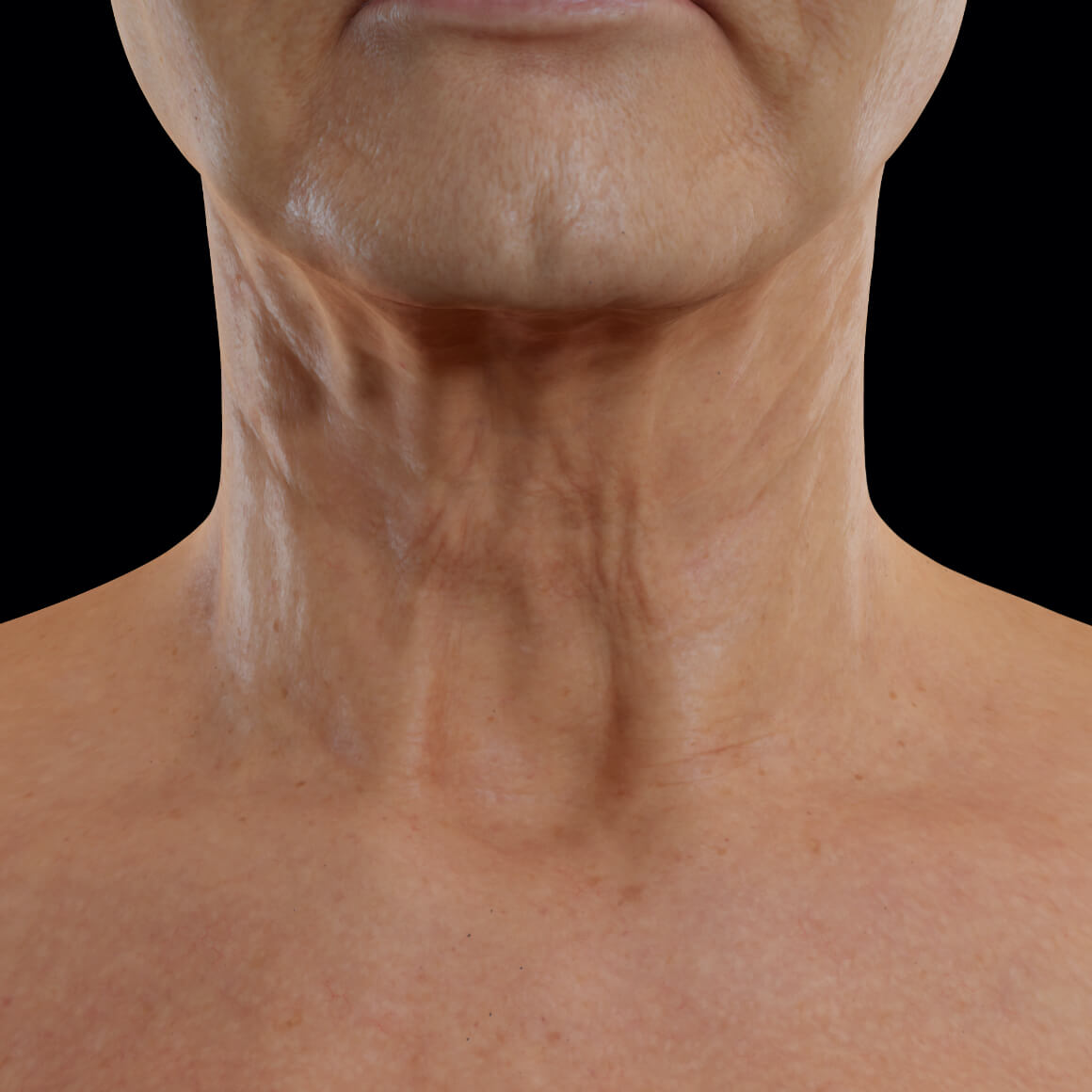 Female patient from Clinique Chloé facing front after Tight Sculpting laser treatments for neck skin tightening
