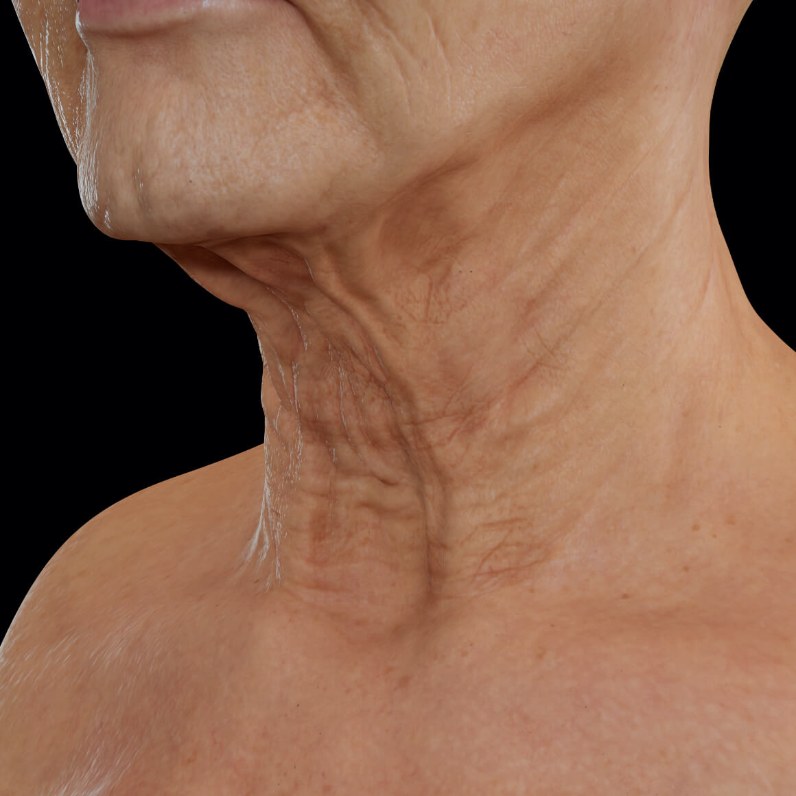 Female patient from Clinique Chloé positioned at an angle with laxity in the neck area