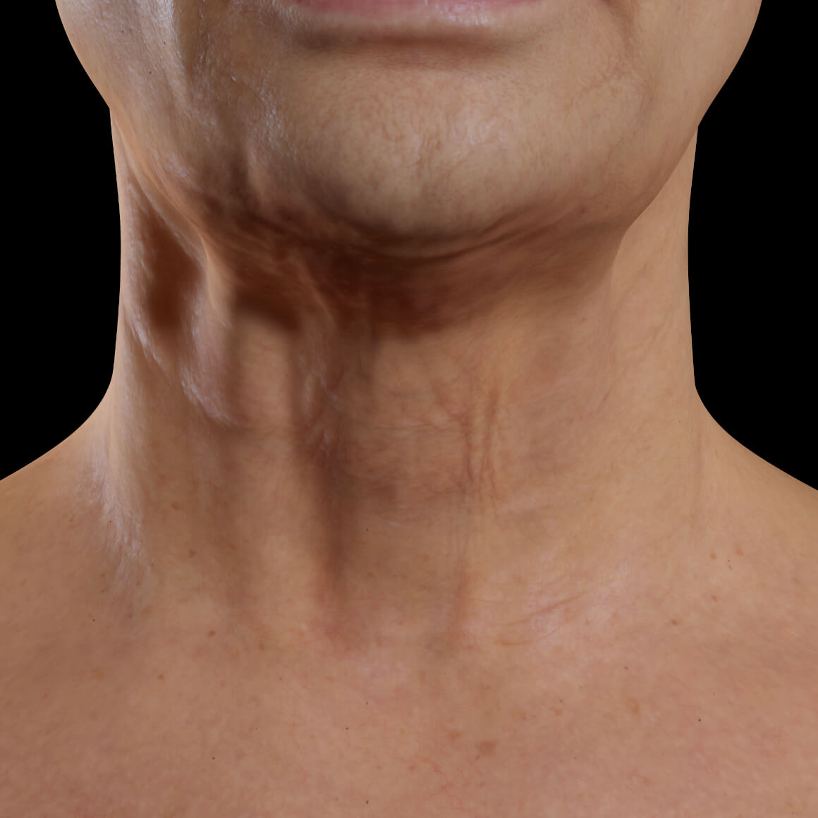 Clinique Chloé female patient facing front after Venus Legacy neck skin tightening treatments