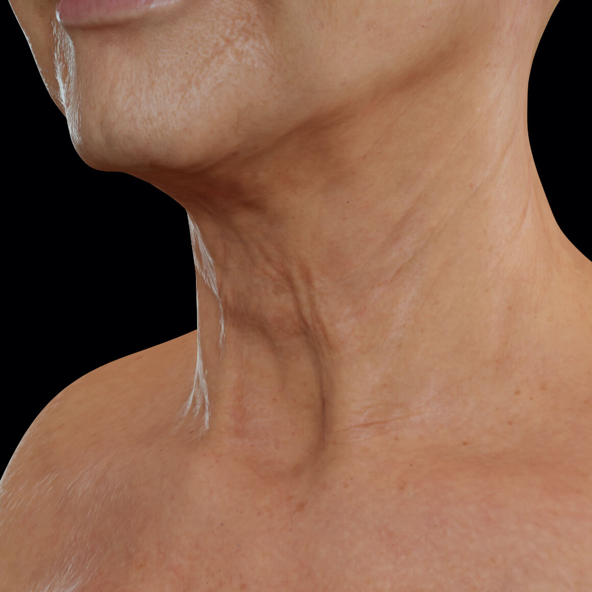Female patient from Clinique Chloé positioned at an angle after Venus Viva treatments for neck skin tightening