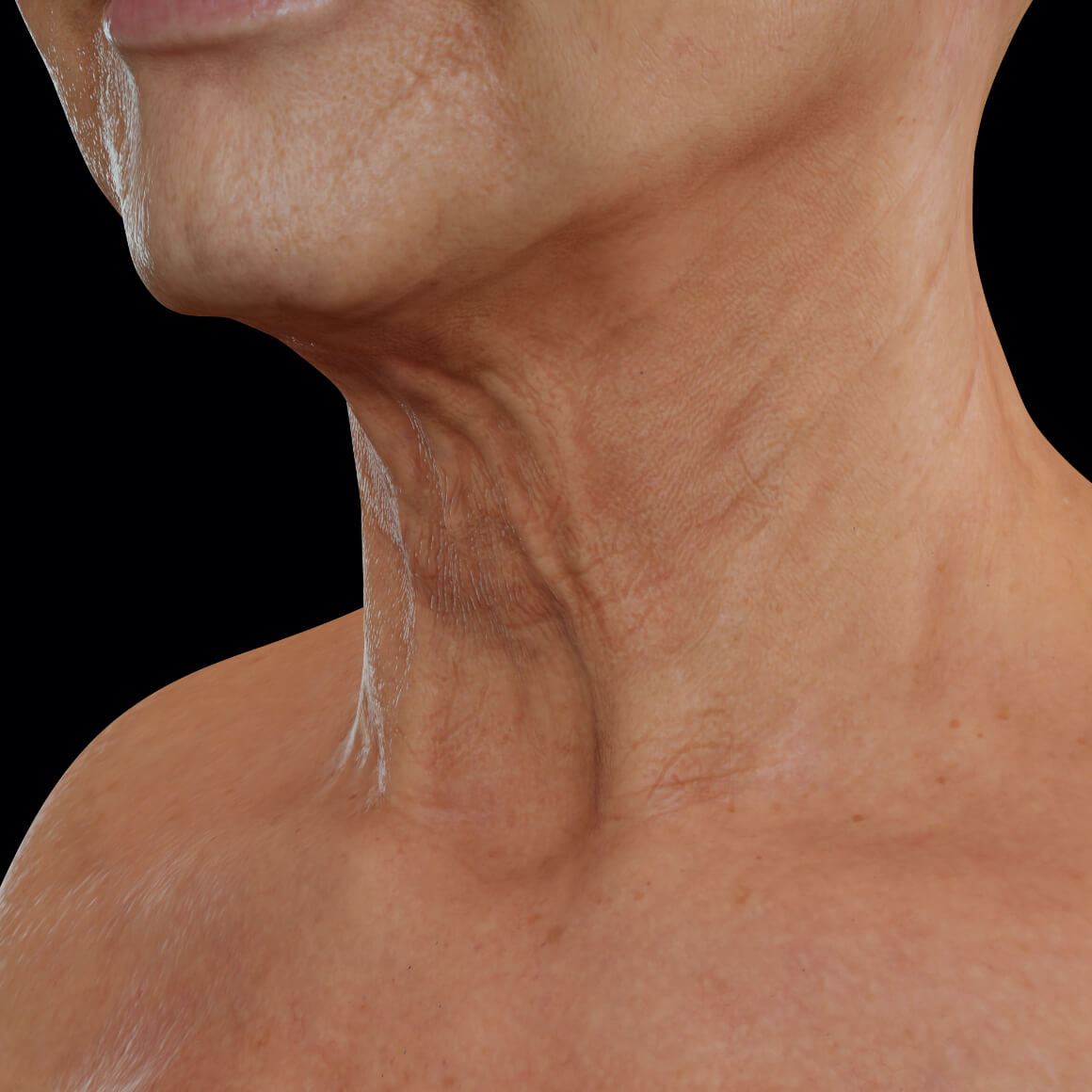 Female patient from Clinique Chloé positioned at an angle showing laxity in the skin of the neck