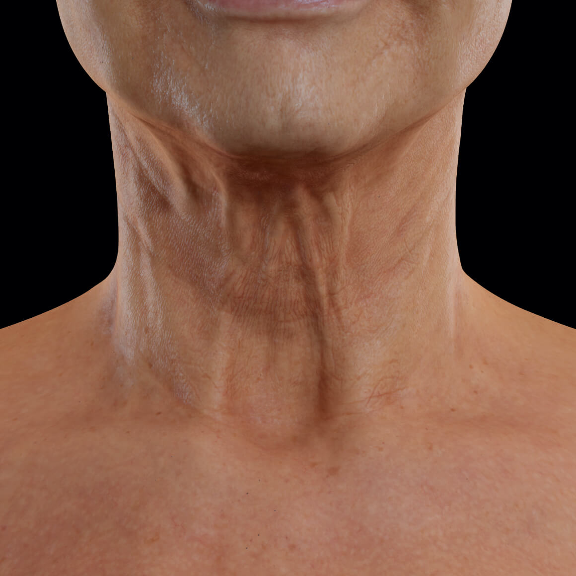 Female patient from Clinique Chloé facing front showing laxity in the skin of the neck