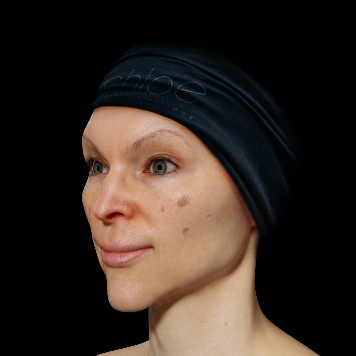 Patiente de la Clinique Chloé positionnée en angle démontrant des taches pigmentaires sur le visage