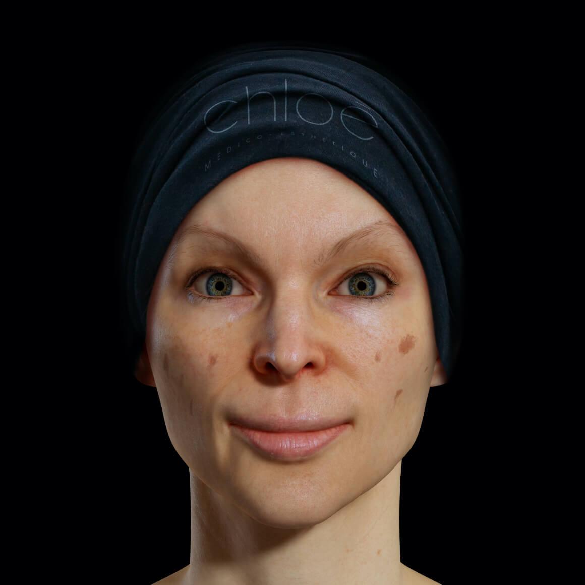 Patiente de la Clinique Chloé positionnée de face démontrant des taches pigmentaires sur le visage