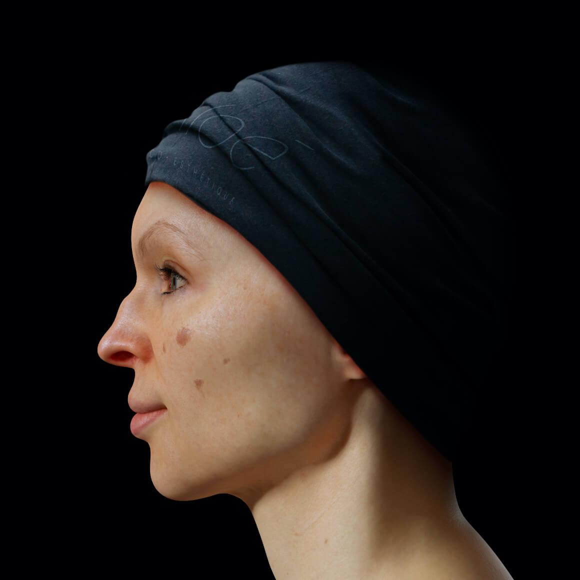 Patiente de la Clinique Chloé positionnée de côté démontrant des taches pigmentaires sur le visage