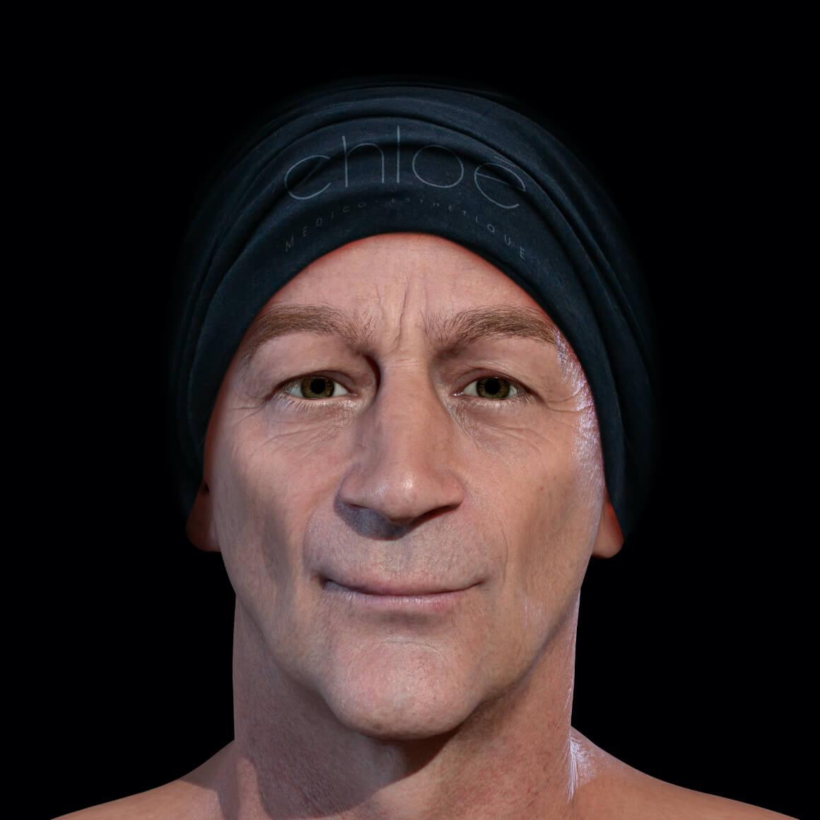 Patient de la Clinique Chloé positionné de face après des peelings chimiques contre les taches pigmentaires