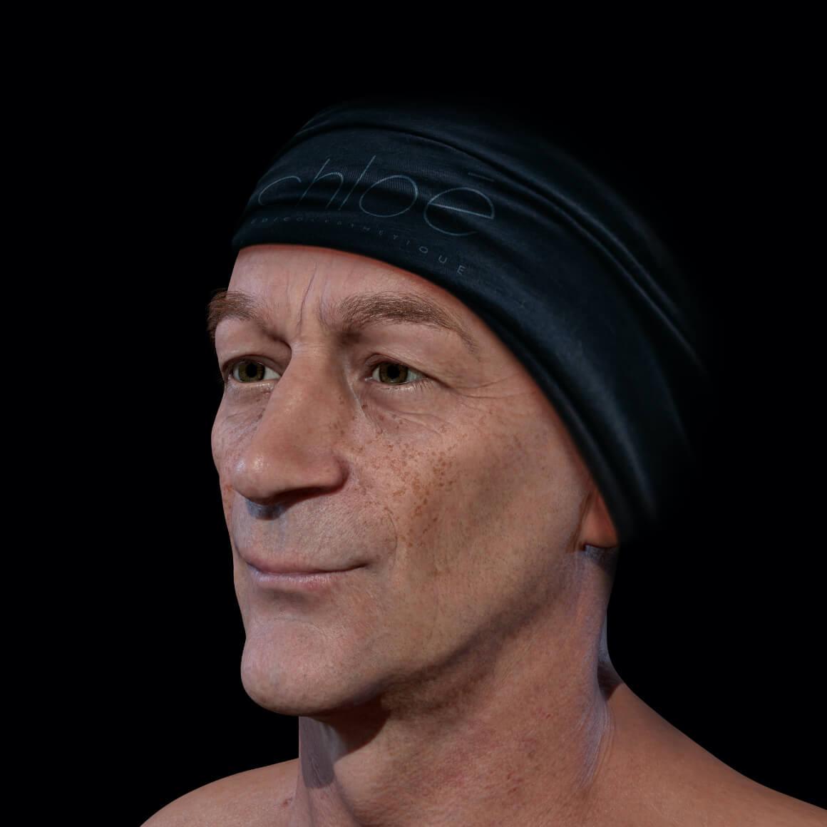 Patient de la Clinique Chloé positionné en angle démontrant des taches pigmentaires sur le visage