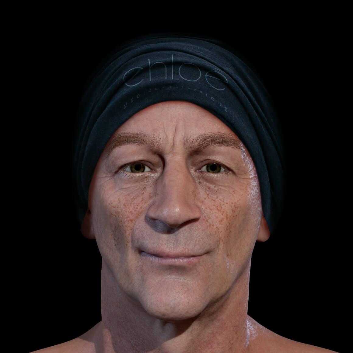 Patient de la Clinique Chloé positionné de face démontrant des taches pigmentaires sur le visage