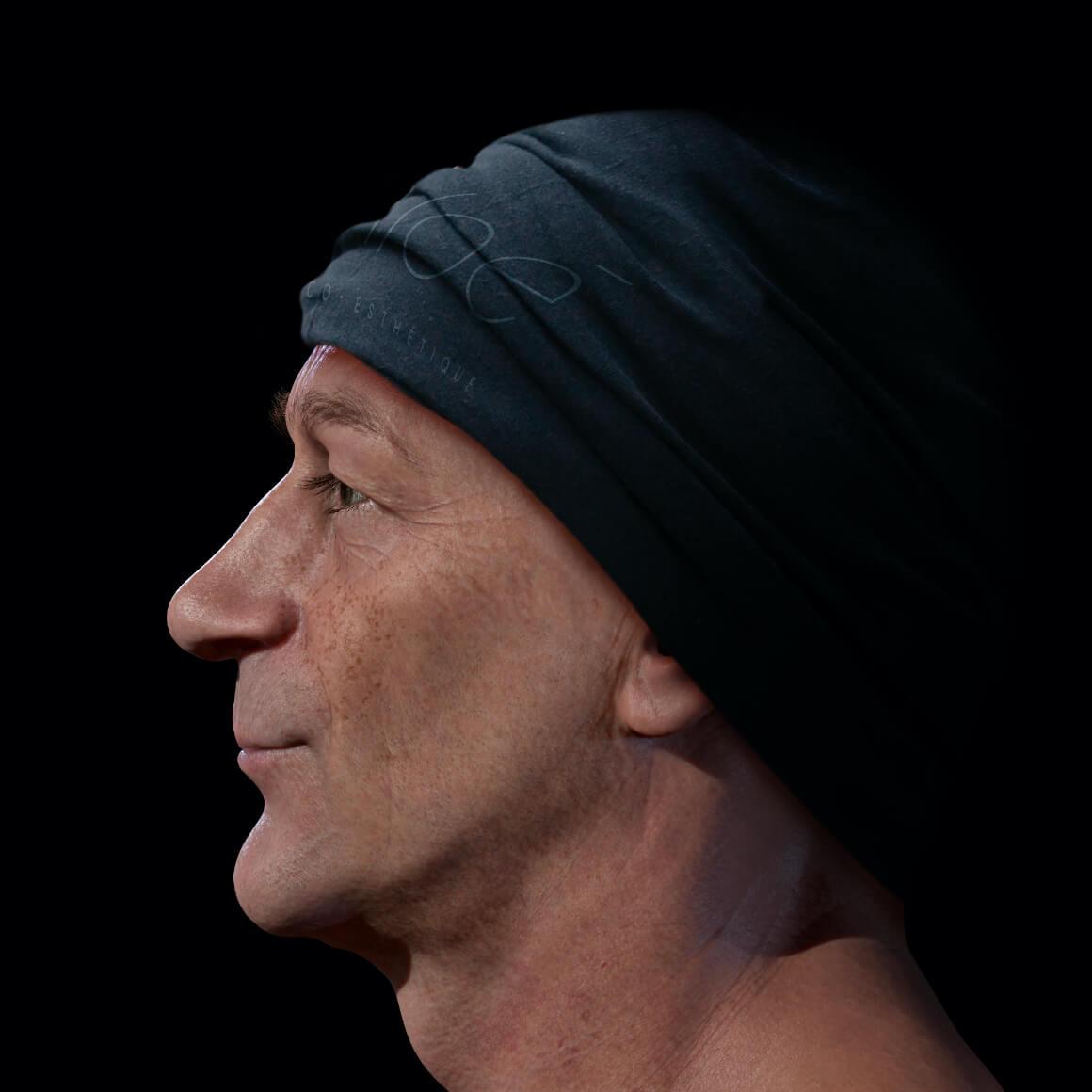 Patient de la Clinique Chloé positionné de côté démontrant des taches pigmentaires sur le visage