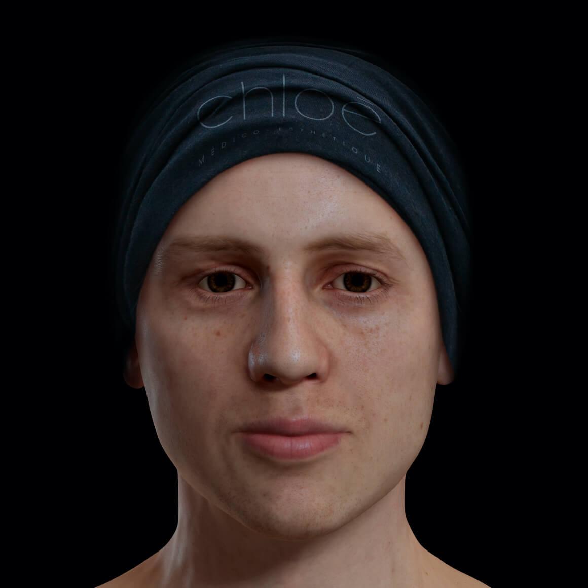 Patient de la Clinique Chloé de face après des traitements laser Fotona Acné pour traiter de l'acné active sur le visage