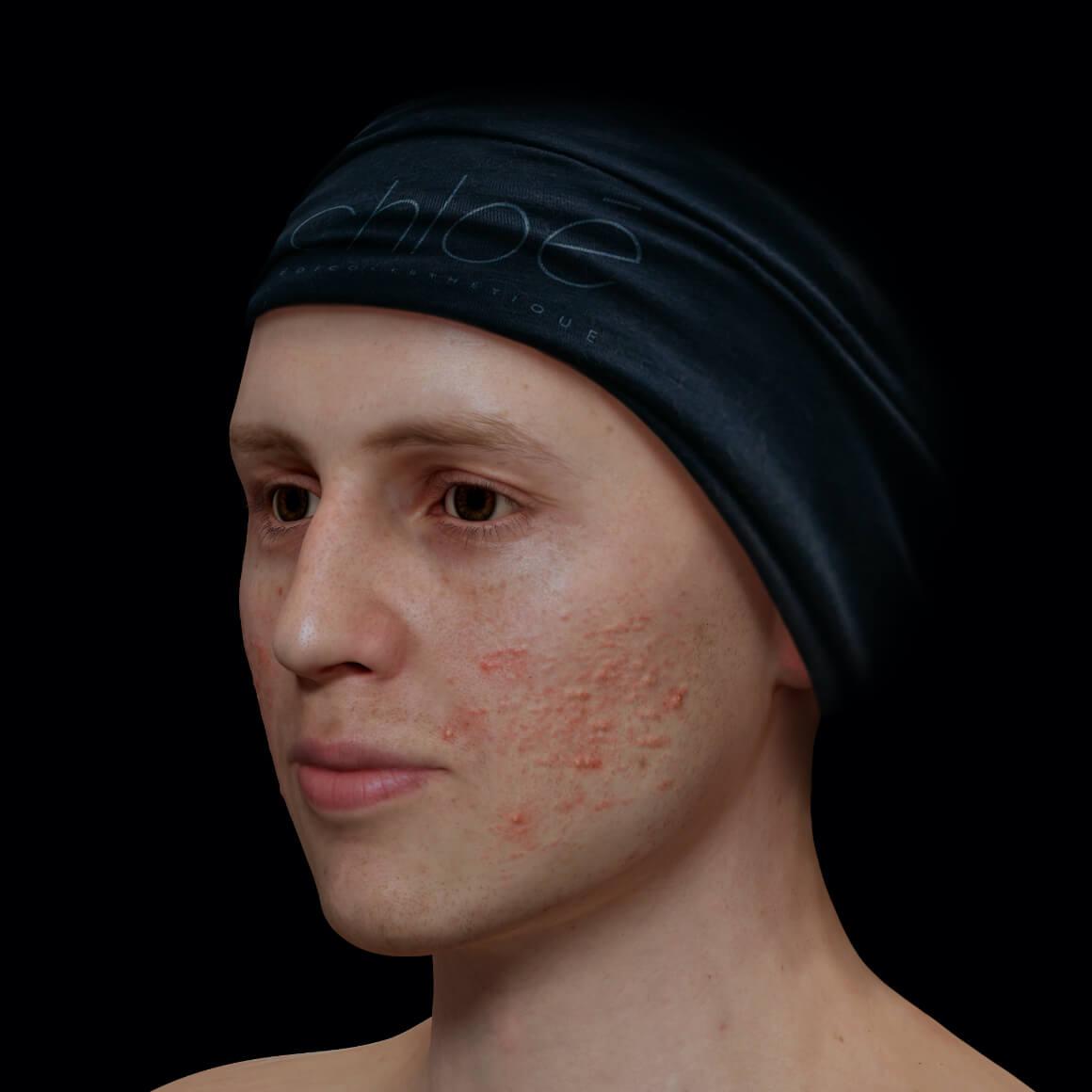Patient de la Clinique Chloé positionné en angle ayant de l'acné active sur le visage