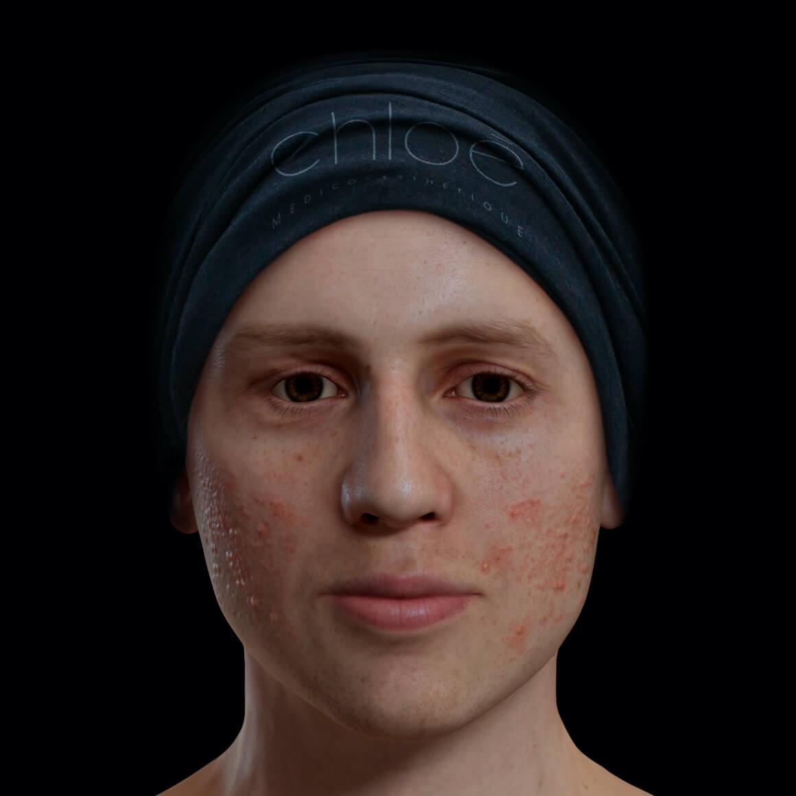 Patient de la Clinique Chloé positionné de face ayant de l'acné active sur le visage