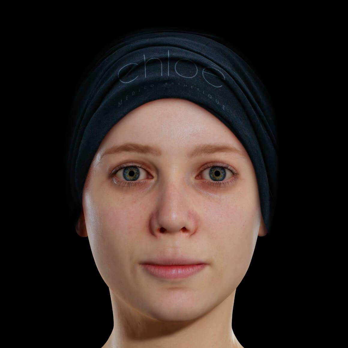 Patiente de la Clinique Chloé de face après des peelings chimiques pour traiter de l'acné active