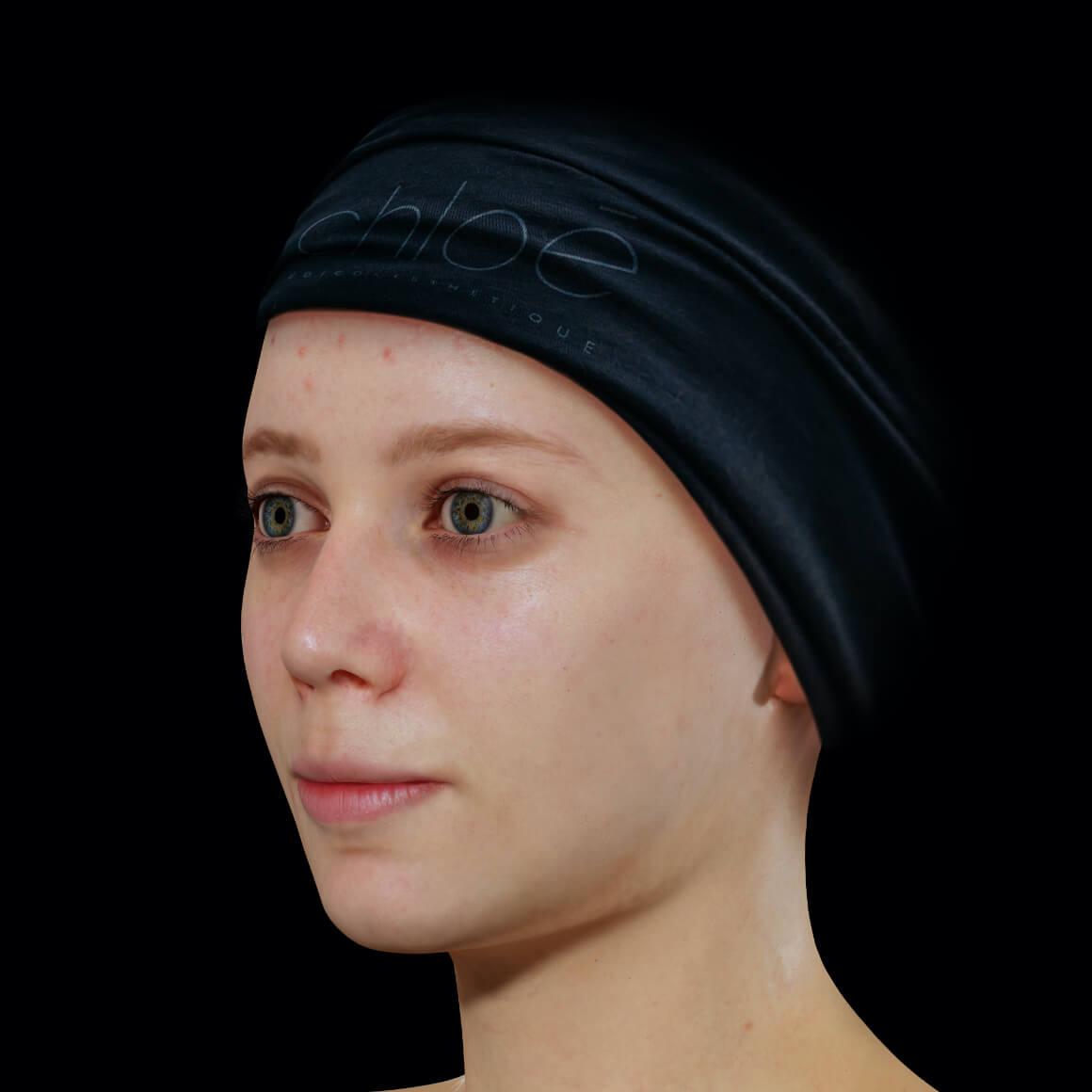 Patiente de la Clinique Chloé positionnée en angle ayant de l'acné active sur le front