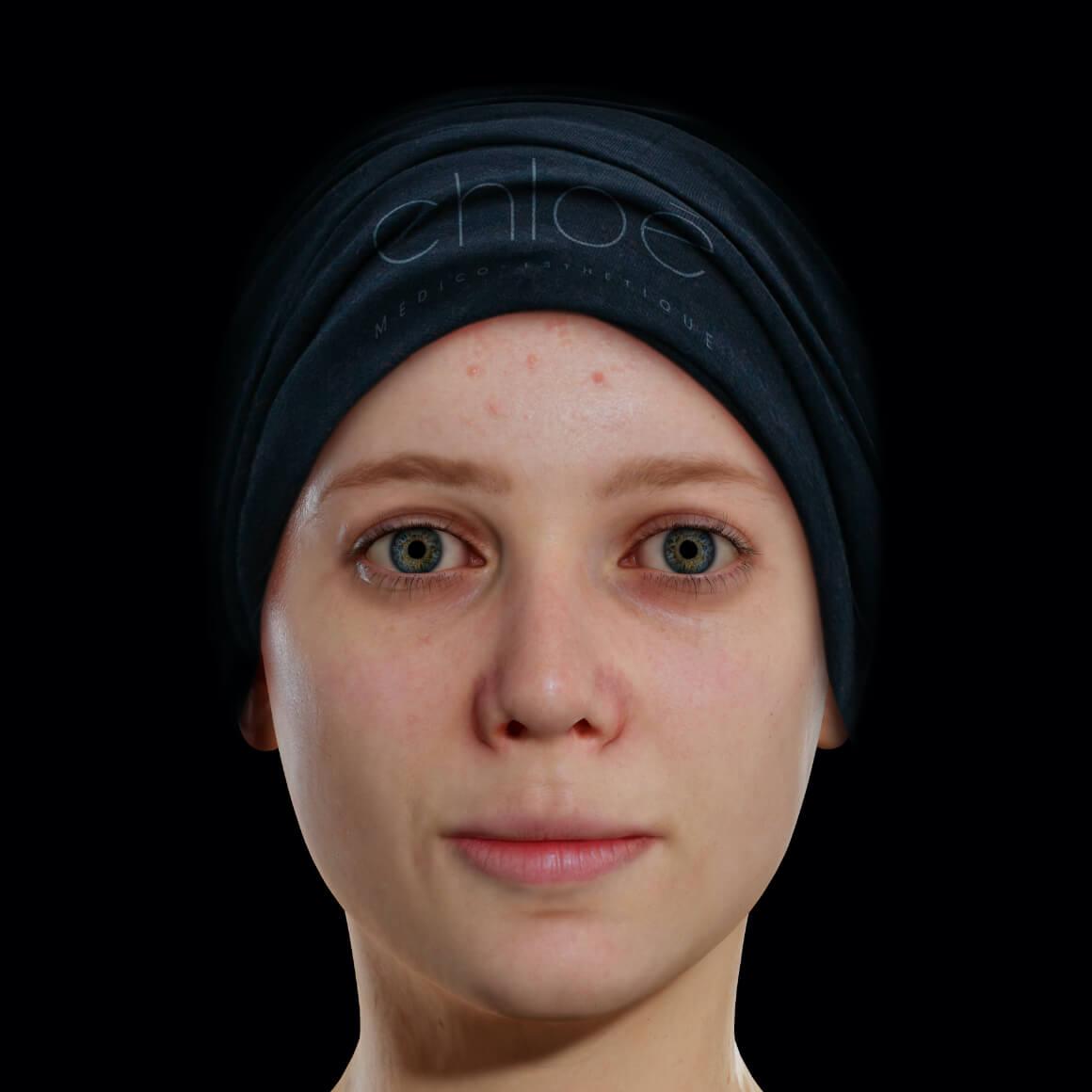 Patiente de la Clinique Chloé positionnée de face ayant de l'acné active sur le front