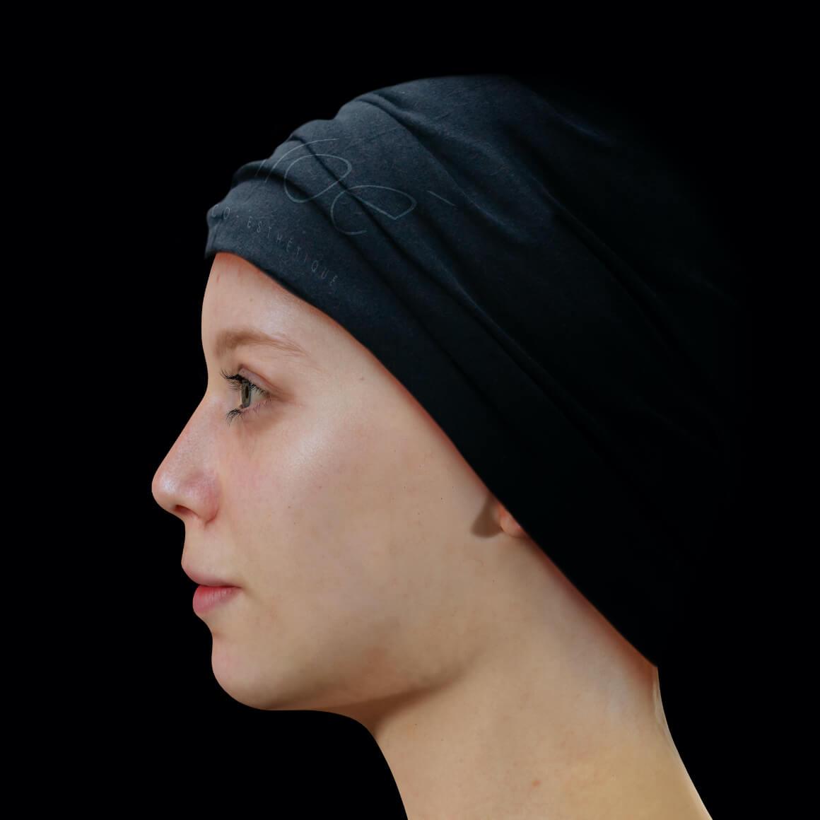 Patiente de la Clinique Chloé positionnée de côté ayant de l'acné active sur le front