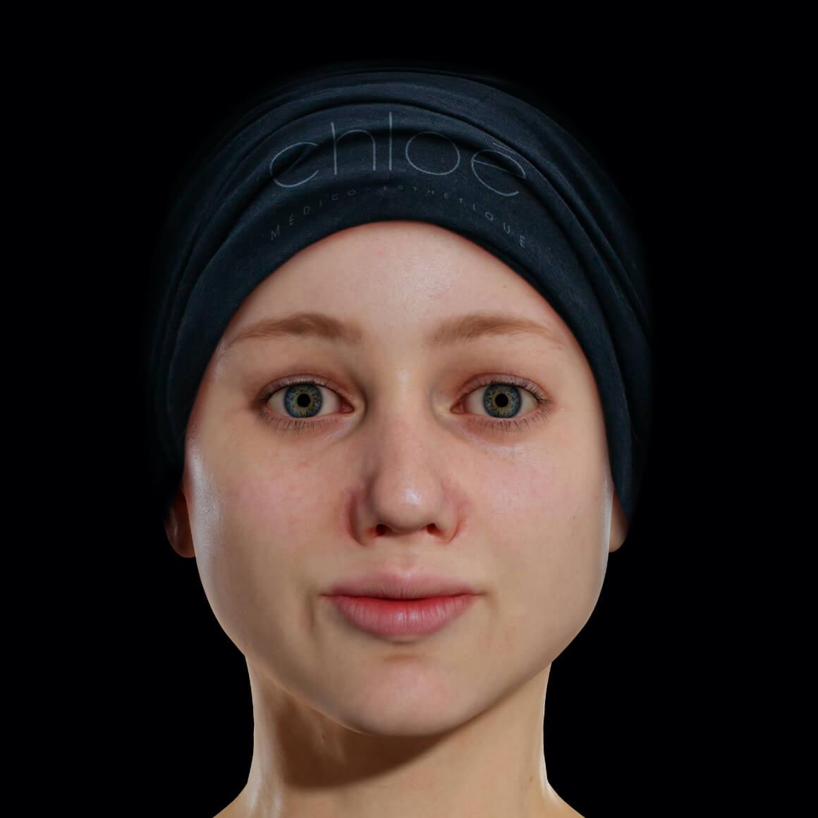 Patiente de la Clinique Chloé de face après des traitements au laser Vbeam pour traiter de l'acné active