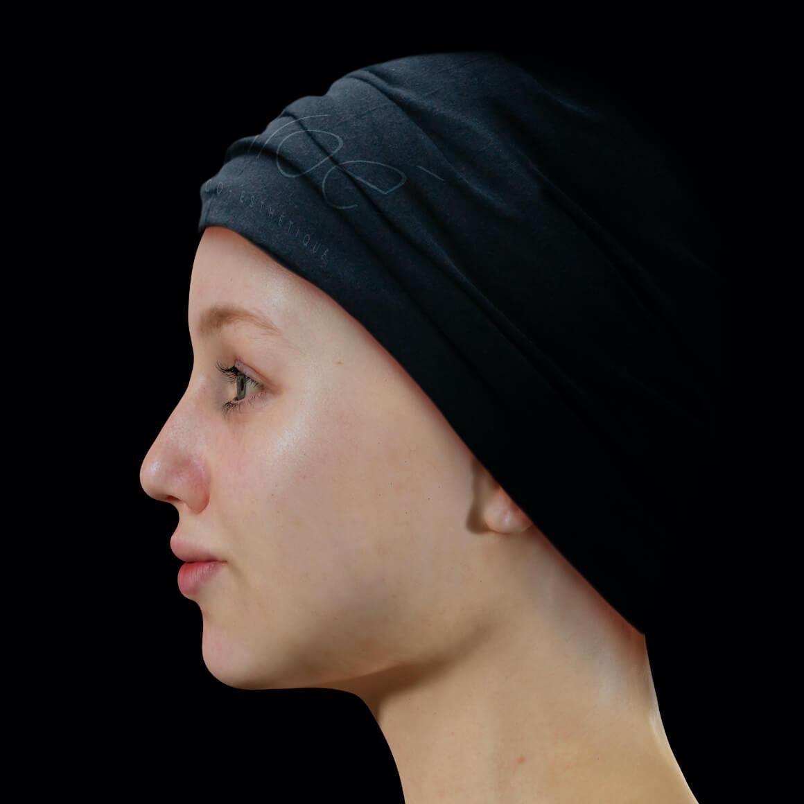 Patiente de la Clinique Chloé de côté après des traitements au laser Vbeam pour traiter de l'acné active
