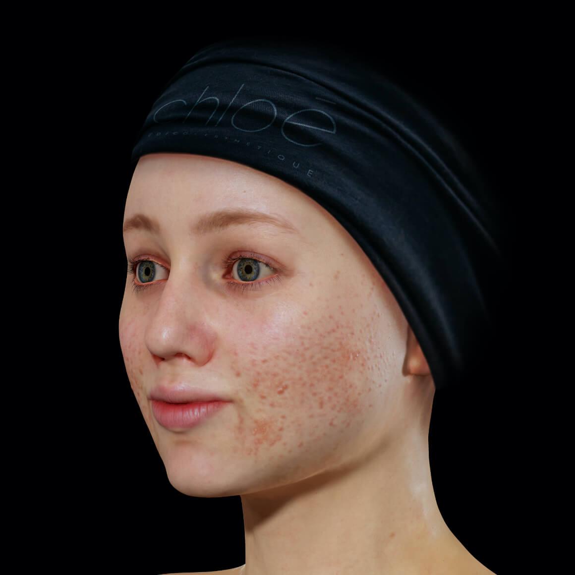 Patiente de la Clinique Chloé positionnée en angle ayant de l'acné active sur le visage