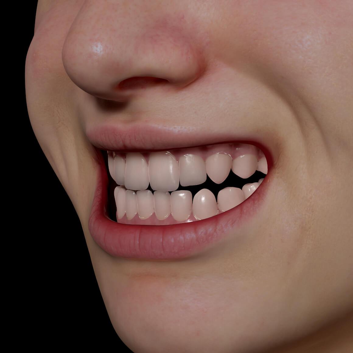 Sourire en angle d'une patiente de la Clinique Chloé avec des dents droites après un traitement d'alignement dentaire Invisalign