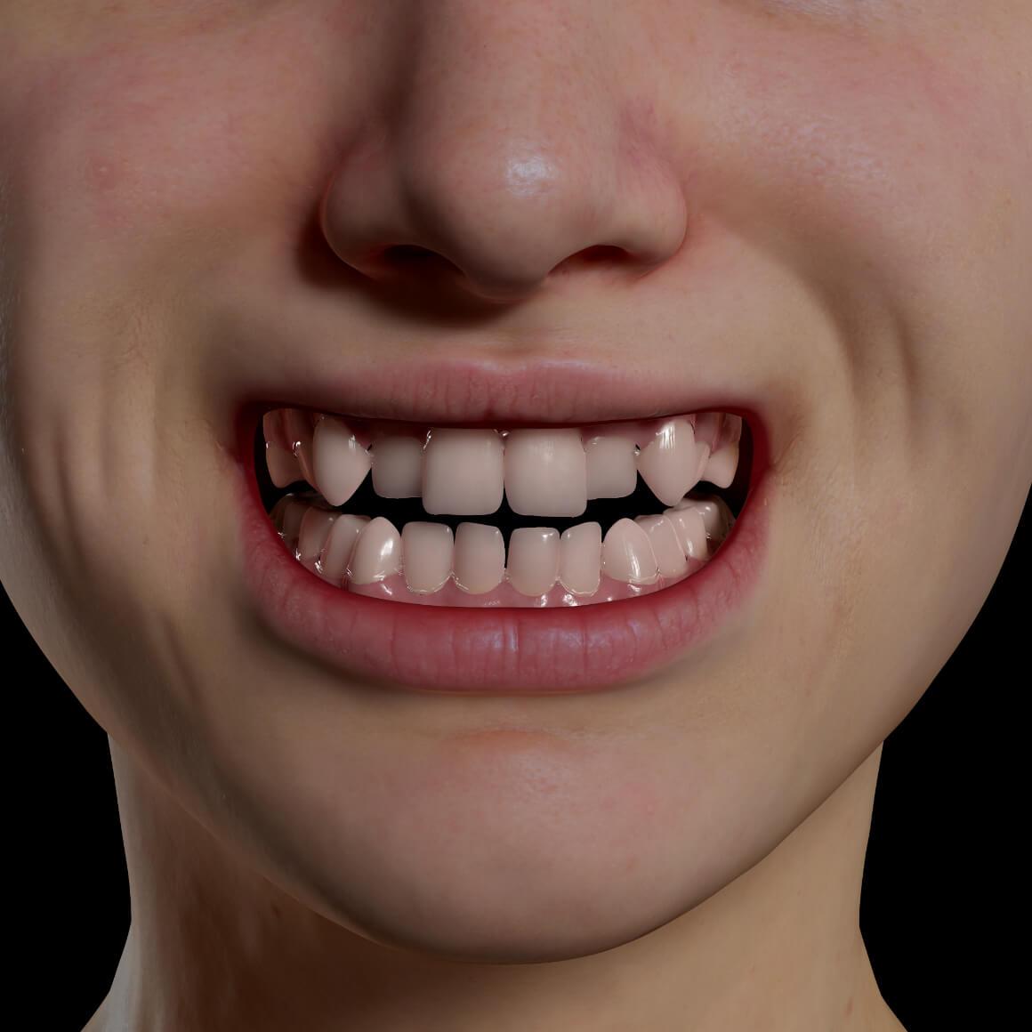 Sourire d'une patiente de la Clinique Chloé positionné de face démontrant des dents croches et mal alignées