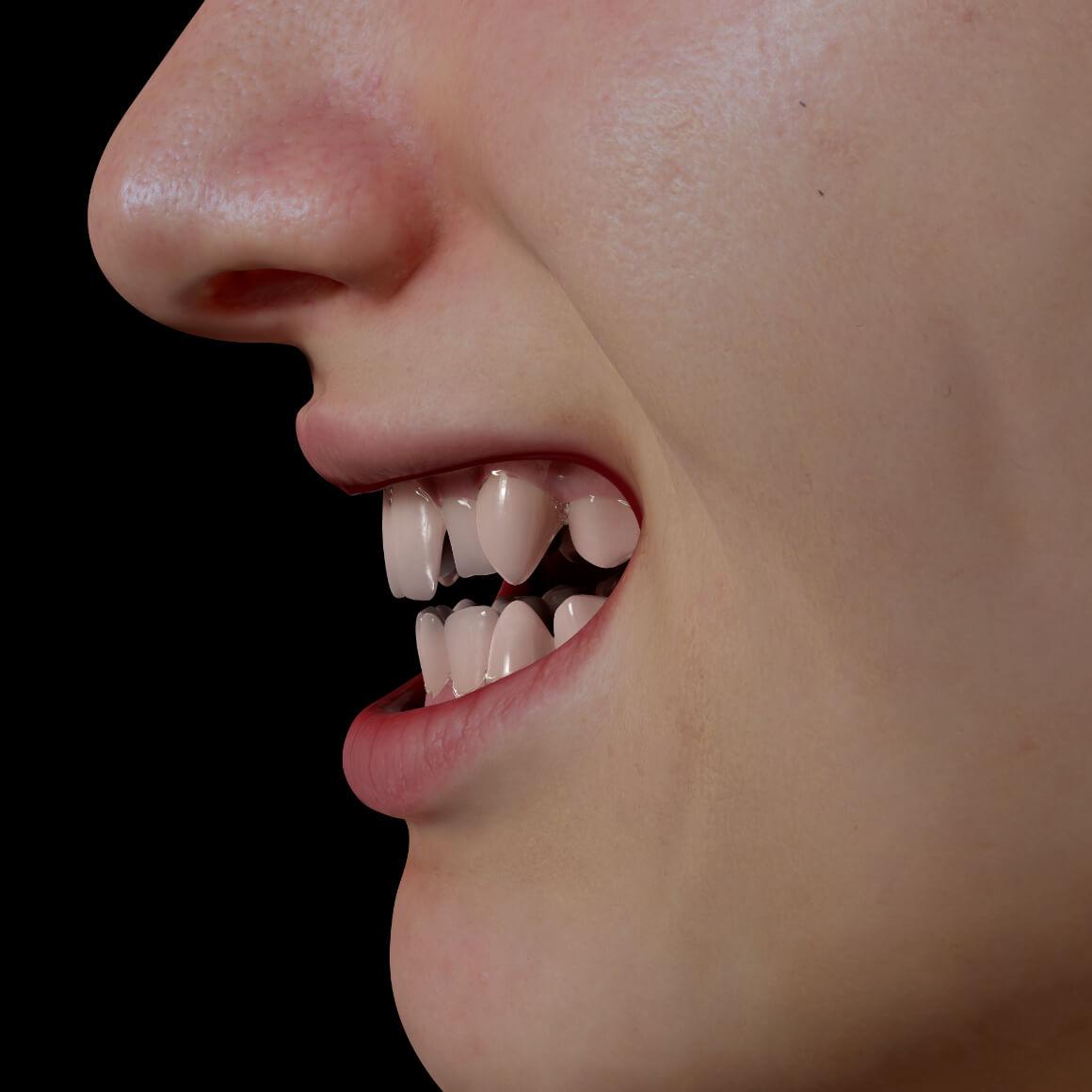 Sourire d'une patiente de la Clinique Chloé positionné de côté démontrant des dents croches et mal alignées