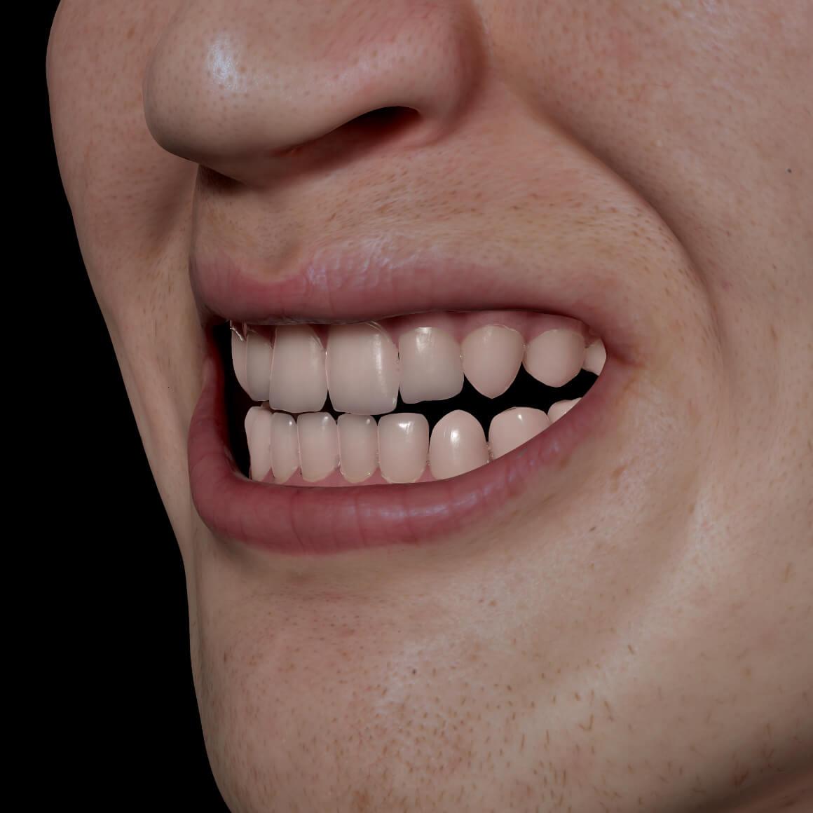 Sourire d'un patient de la Clinique Chloé positionné en angle démontrant des dents blanches après un blanchiment dentaire