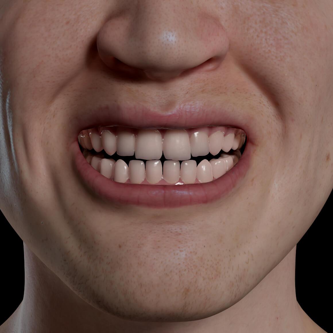 Sourire d'un patient de la Clinique Chloé positionné de face démontrant des dents blanches après un blanchiment dentaire