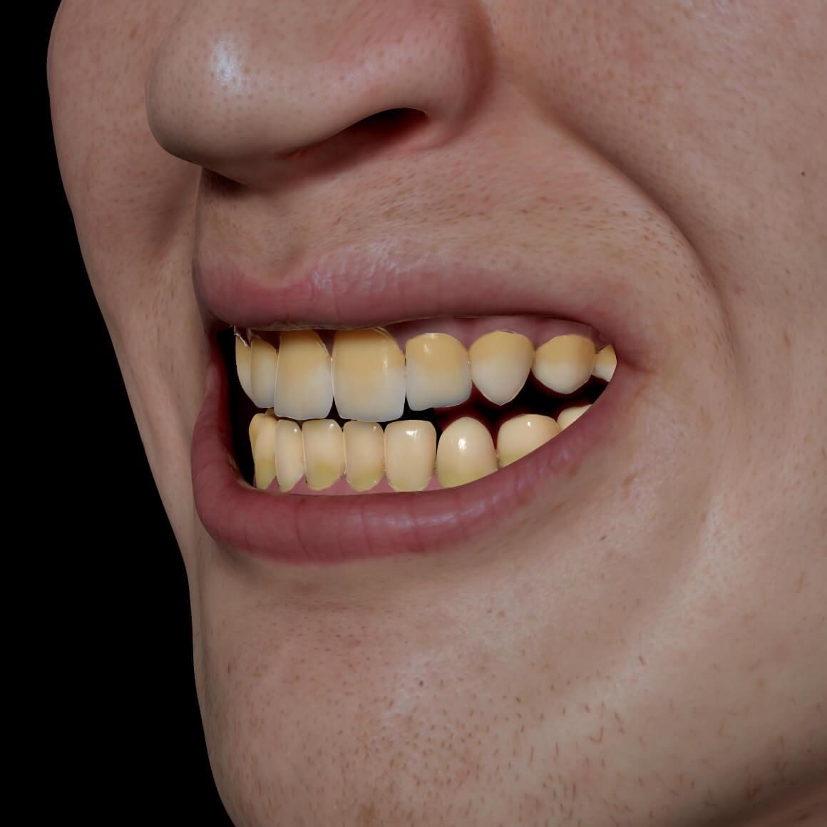 Sourire d'un patient de la Clinique Chloé positionné en angle démontrant des dents jaunes