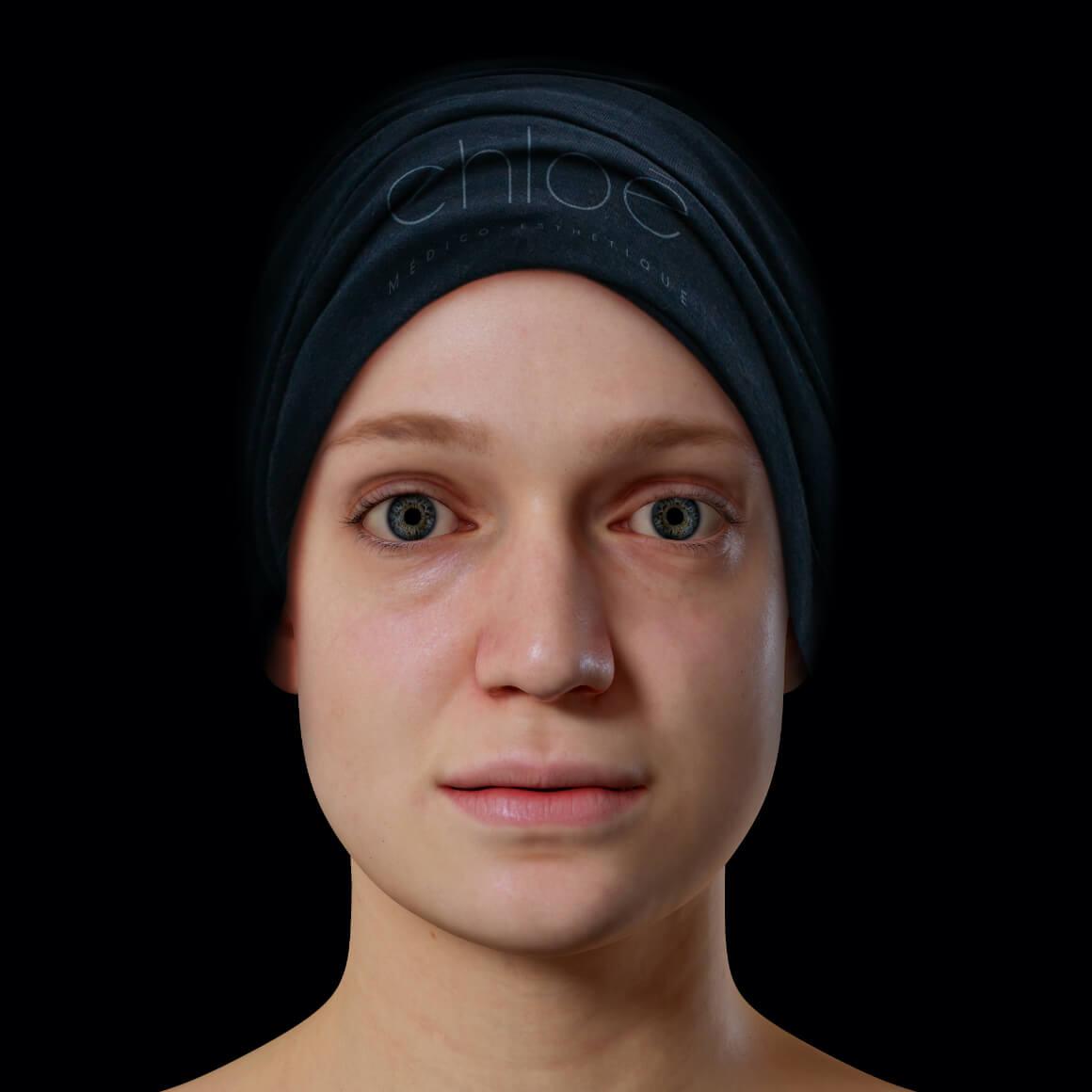 Patiente de la Clinique Chloé de face après des injections d'agents de comblement pour traiter des cicatrices d'acné