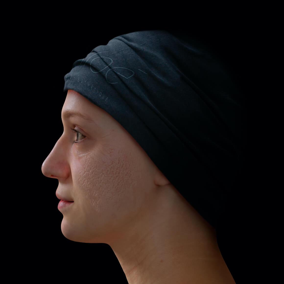 Patiente de la Clinique Chloé positionnée de côté ayant des cicatrices d'acné sur le visage