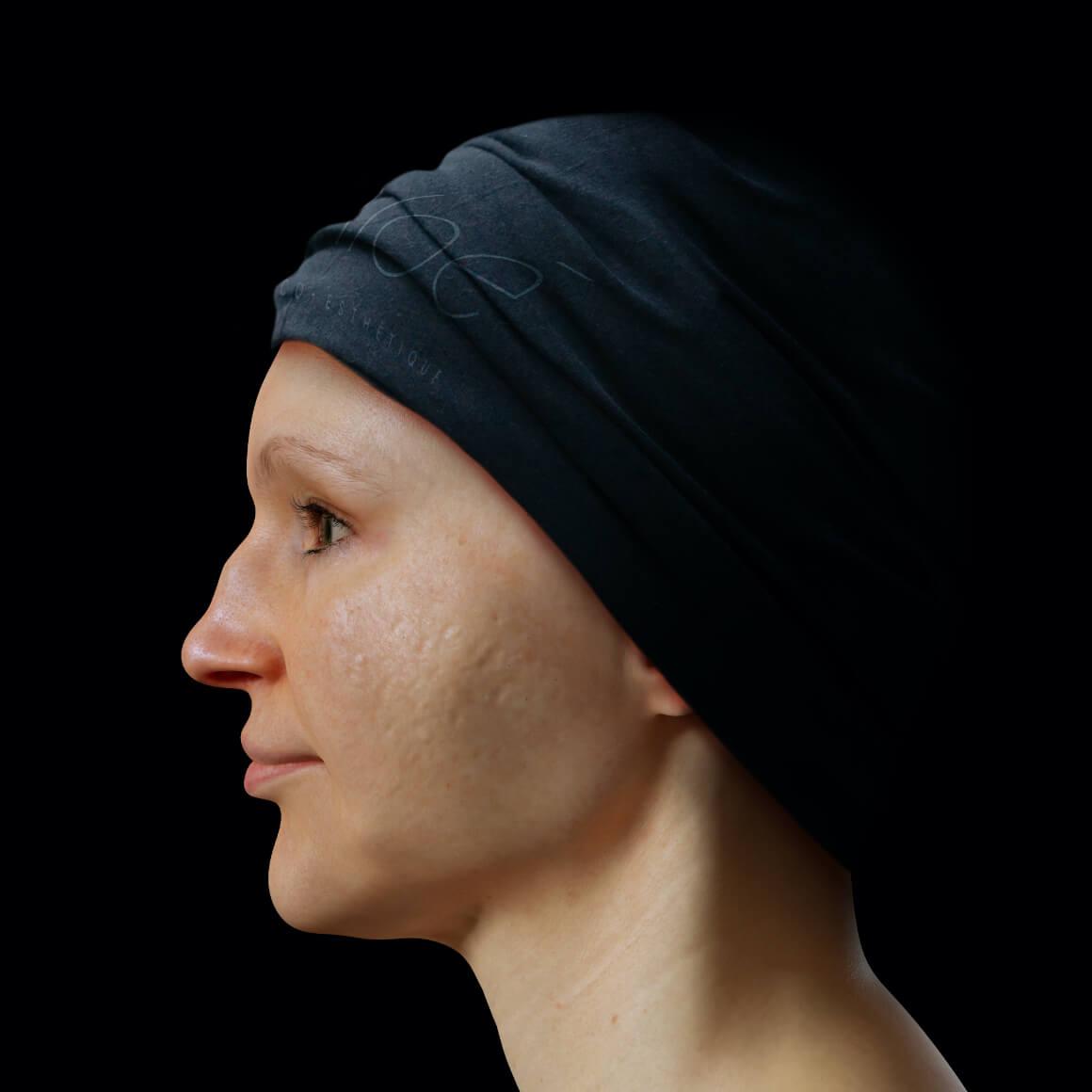 Patiente de la Clinique Chloé de côté après des traitements au laser fractionné pour traiter des cicatrices d'acné au visage