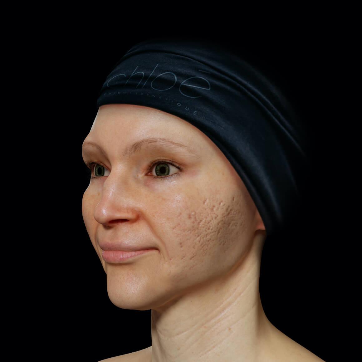 Patiente de la Clinique Chloé positionnée en angle ayant des cicatrices d'acné sur le visage